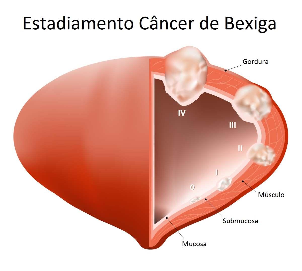cancer de uretra feminina papilomatoza laringelui cum se tratează