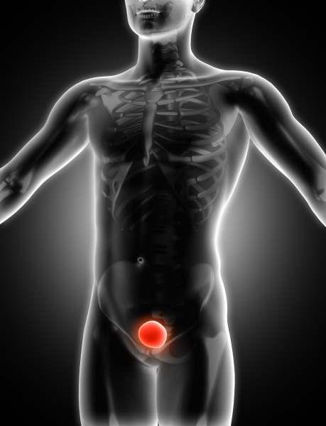 las terapias de levas para el cáncer de próstata son una revisión específica